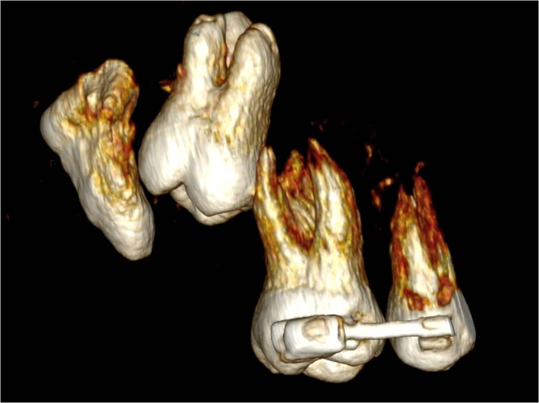 case study 2 bone tissue questions Wound care case studies  case study no 2  complete with exposed bone and tendon the case was further complicated by issues with the anterior tibia and the.